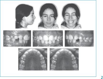 Ортодонтична ситуація дівчинки до лікування