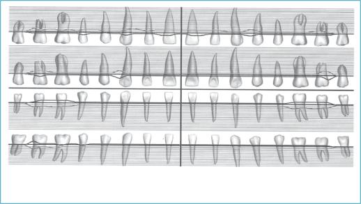 Метод хірургічної тракції зубів