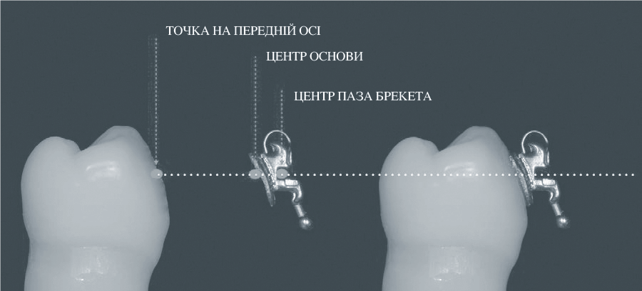 Ідеальне співвідношення між центром паза, центром основи брекета та точки прив'язки