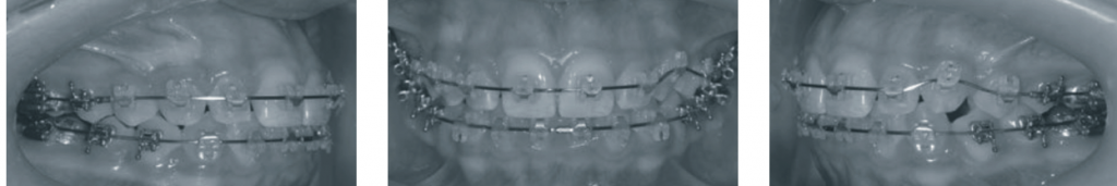 Завершення горизонтального вирівнювання верхнього зубного ряду