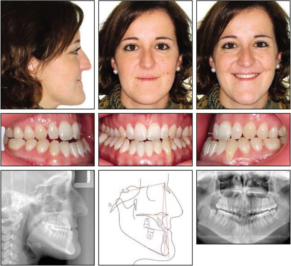 Жінка з скелетним і зубним III ступеня тяжкості прикусом