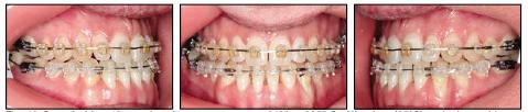 Через 10 місяців лікування на верхню щелепу зафіксували дугу Сu Nitanium