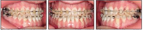Через 12,5 місяців лікування на верхню щелепу зафіксували фінішингову дугу