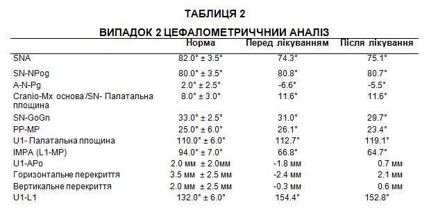 Таблиця 2. Цефалометричний аналіз